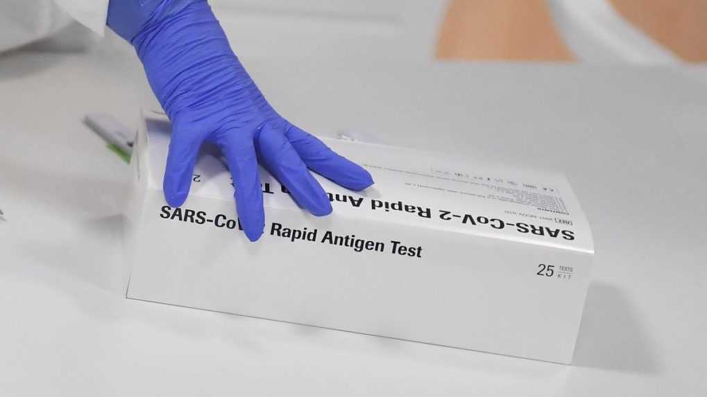 Dva PCR testy mesačne by mohli byť zadarmo. Aká bude cena antigénových testov?