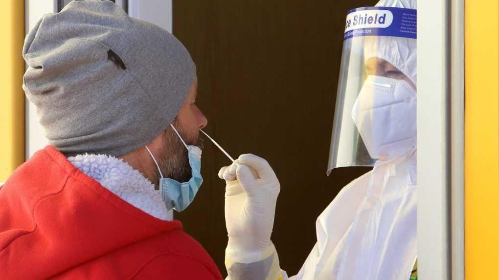Za sobotu pribudlo 862 nových prípadov koronavírusu