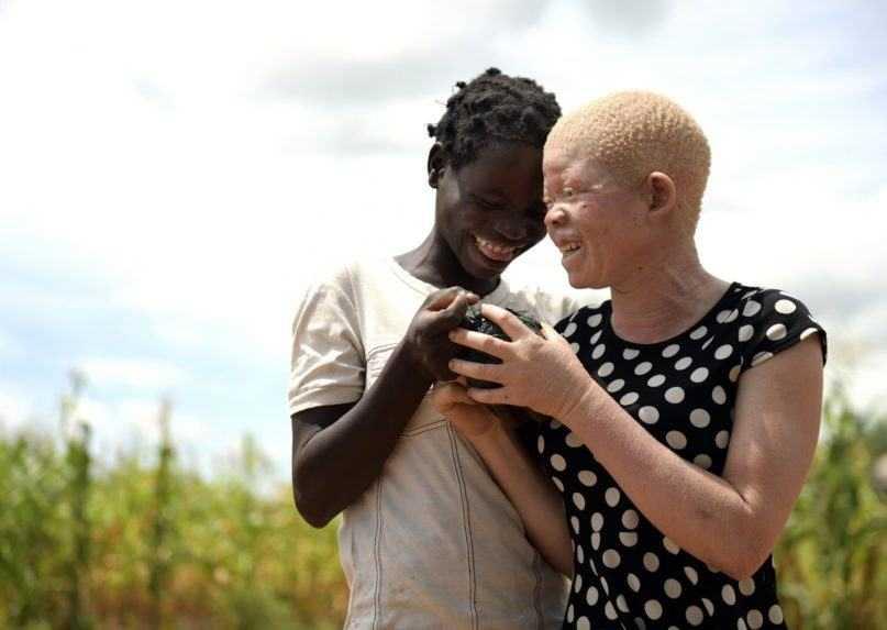 OSN: Počas pandémie narástol počet vrážd ľudí postihnutých albinizmom
