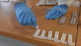 antigénové testovanie