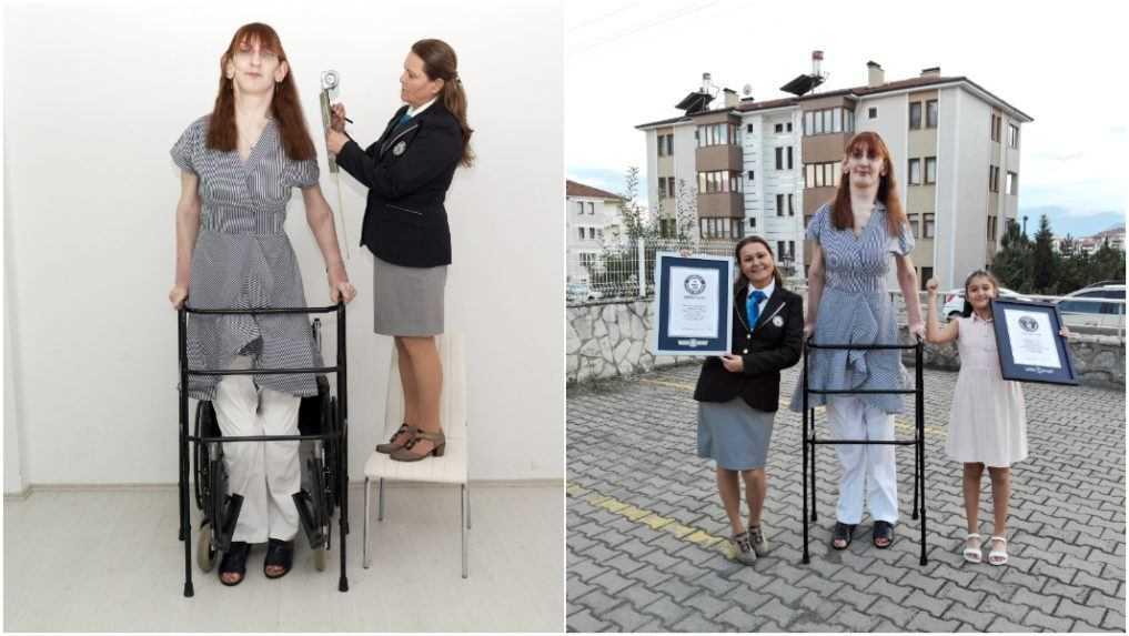 Najvyššia žijúca žena je z Turecka, meria vyše 215 centimetrov