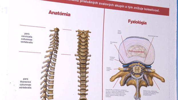 Reumatoidná artritída trápi na Slovensku viac ako 26 000 ľudí
